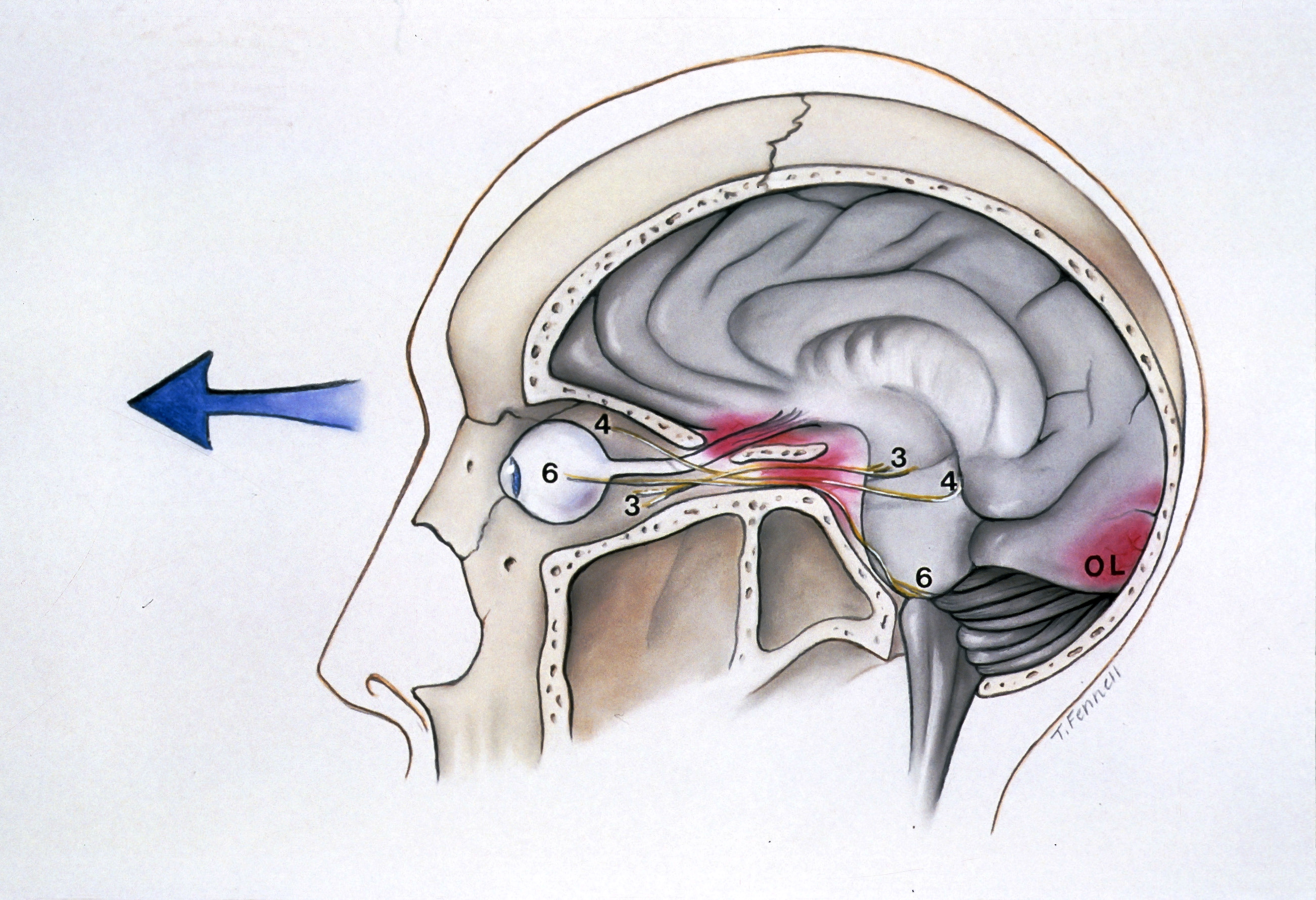 eye and brain The brain is the part of the body which lets us, as well as animals, make sense of things  heartbeat, sneezing, eye blinking, and swallowing.