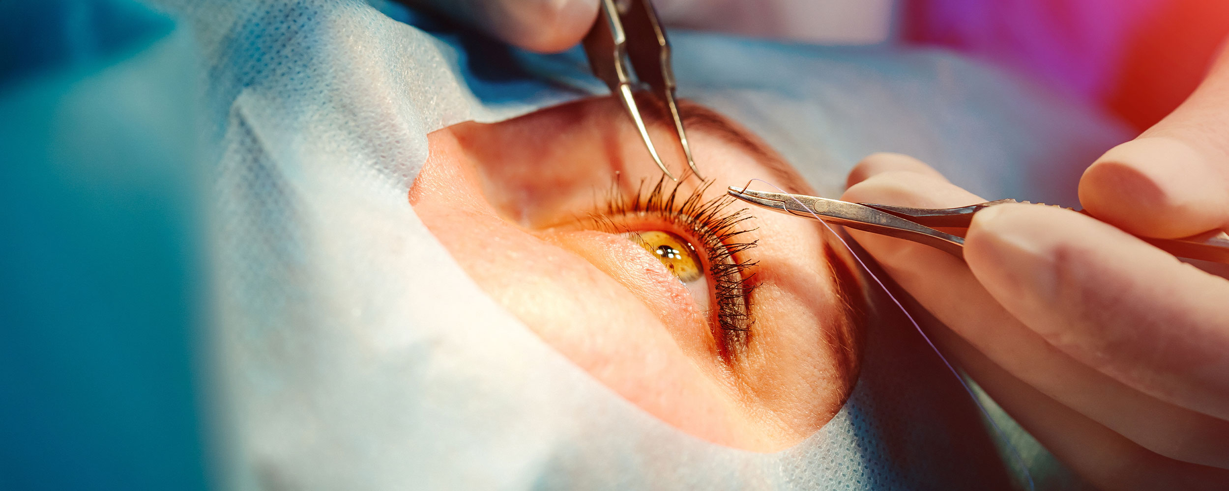 Doctor working on patients eye image